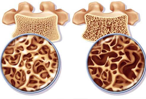 princ_rm_photo_of_osteoporosis