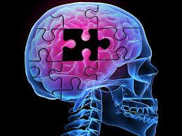 Alzheimers4